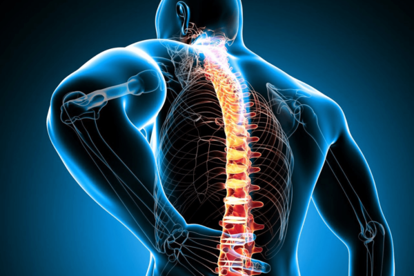 spinal-stenoz
